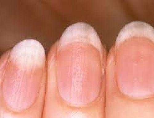 O zdravlju prema – noktima